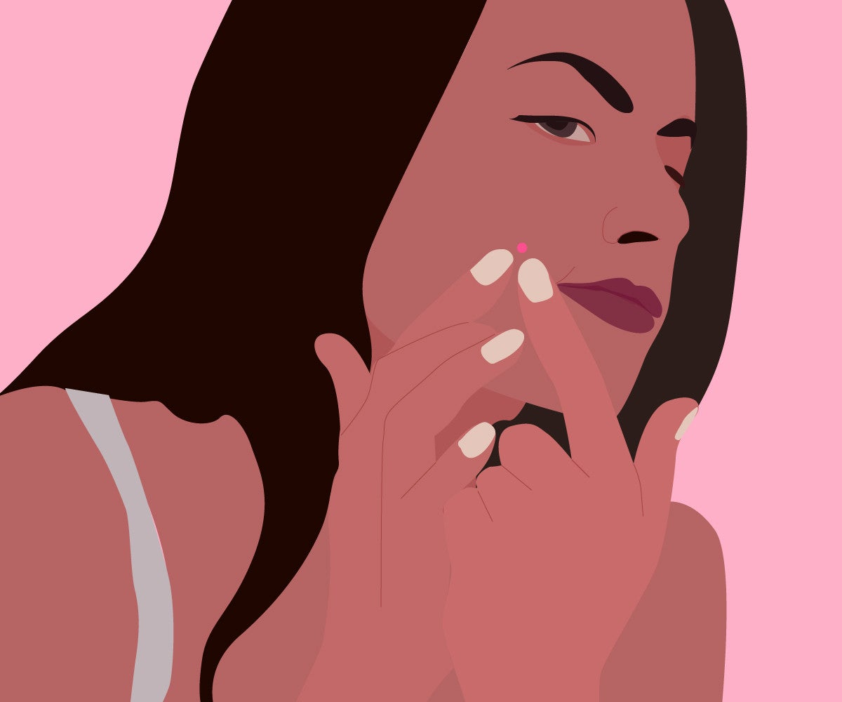 How To Pop A Pimple The Right Way – Healthy Skin Guide